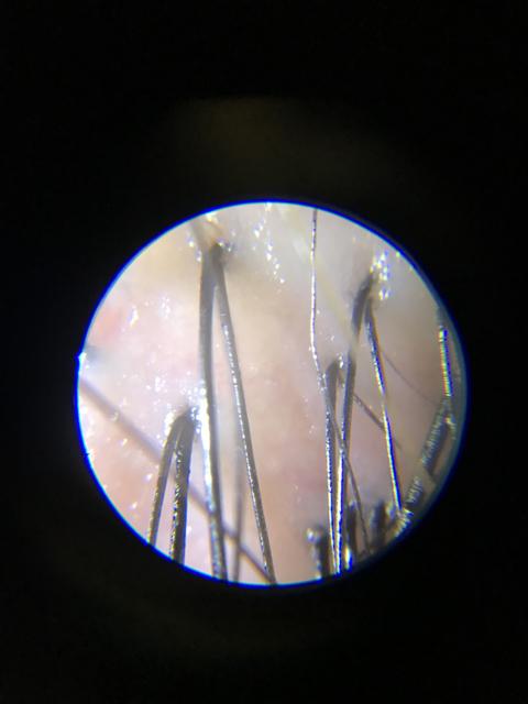 マイクロスコープ診断